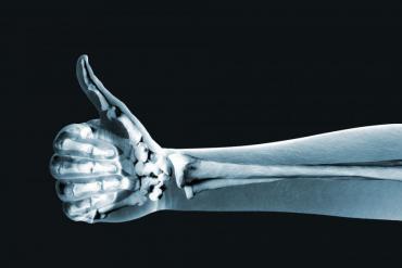 Healthy bones healthy body!